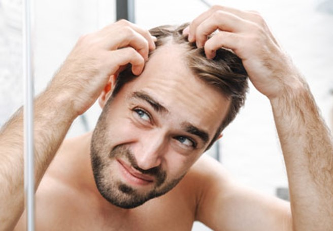 What are the top causes of dandruff? | Nizoral